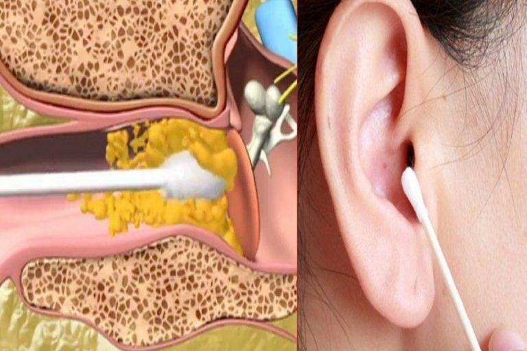 Cómo eliminar la cera de los oídos