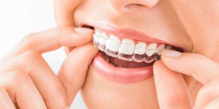 Ortodoncia invisible: qué es, cómo funciona y cuánto cuesta
