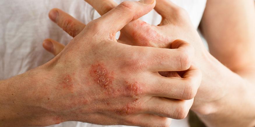 Qué es esclerodermia