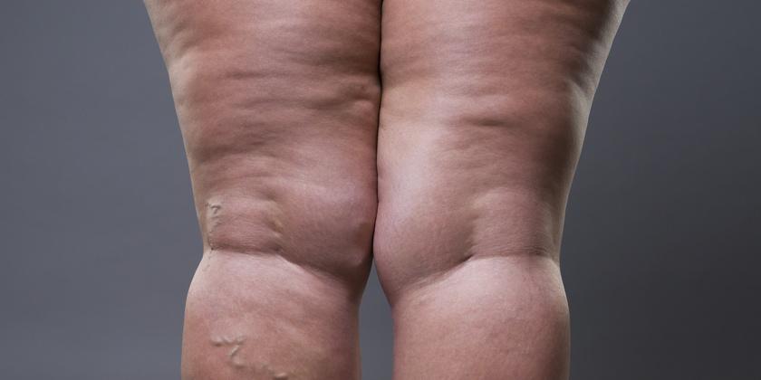 Síntomas y diagnostico del lipedema