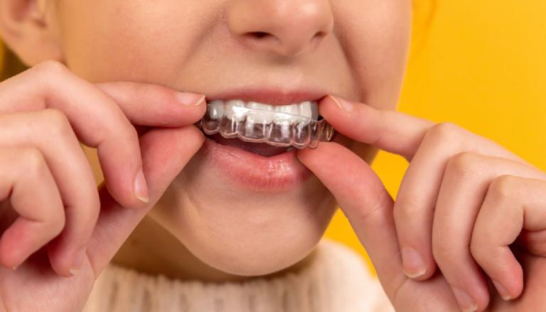 Clínicas dentales especializadas en tratamientos Invisalign