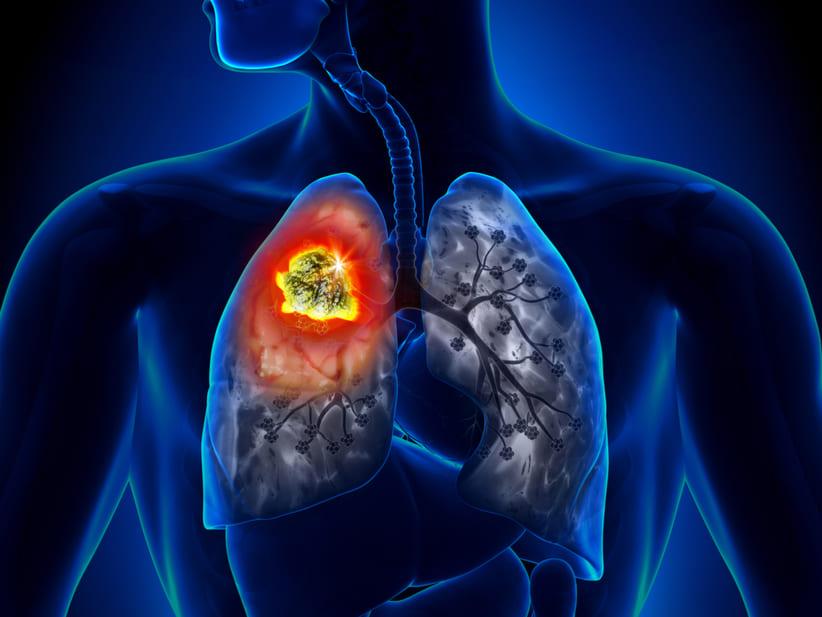 ¿Qué es el cáncer de pulmón?