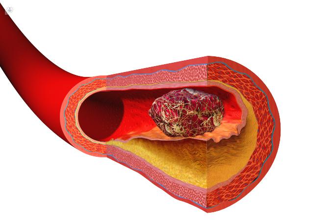 ¿Cuáles son las causas de los trombos?