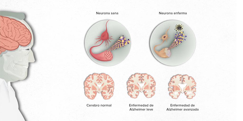 ¿Cómo detectar el Alzheimer en una persona?