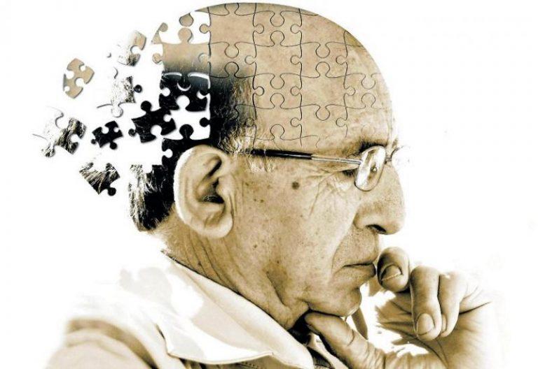 Cómo ralentizar el alzheimer