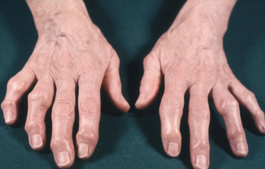 ¿A quiénes afecta la artrosis?