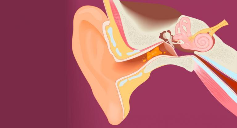 Cómo limpiar el cerumen de los oídos