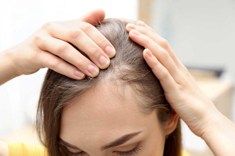 Qué es la alopecia