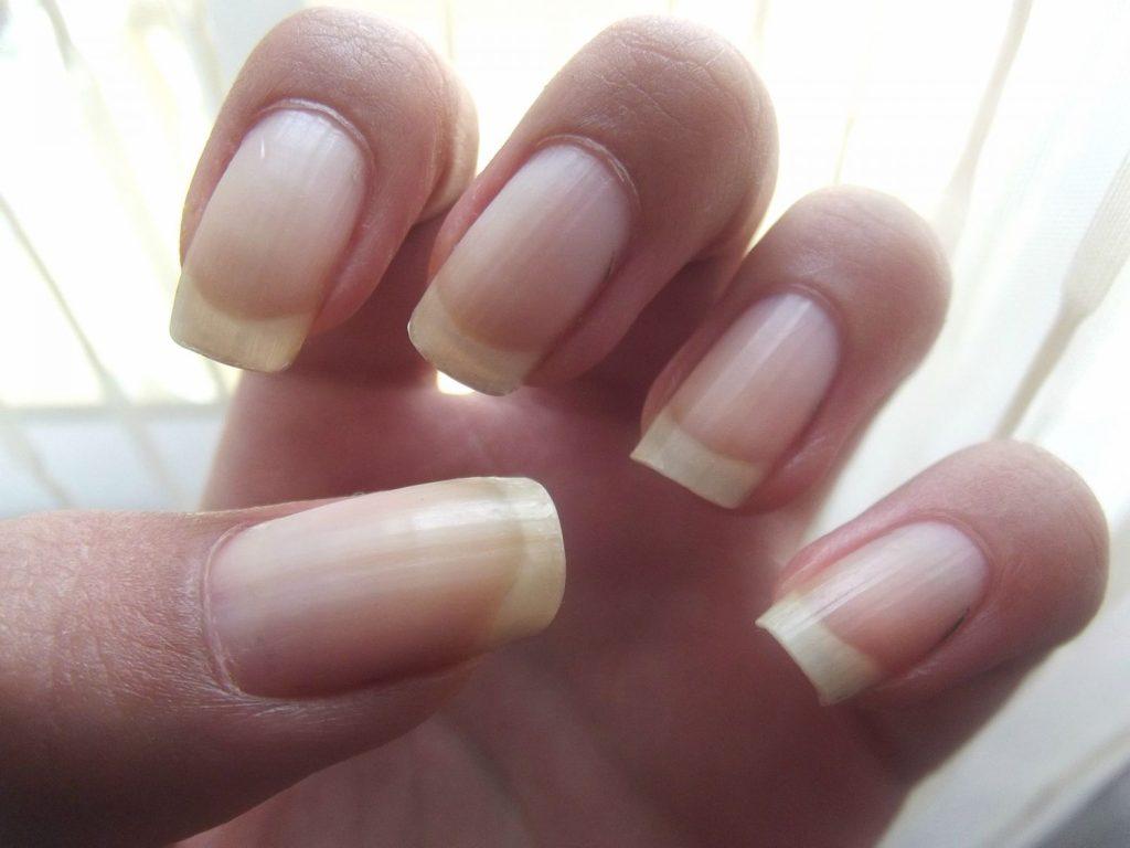 ¿Por qué las uñas se ponen amarillas?