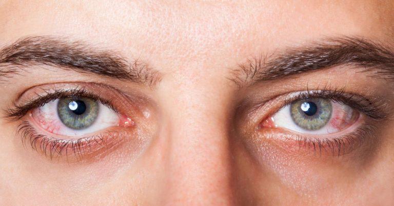 Qué es el síndrome del ojo seco