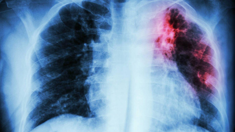 Qué es la fibrosis pulmonar