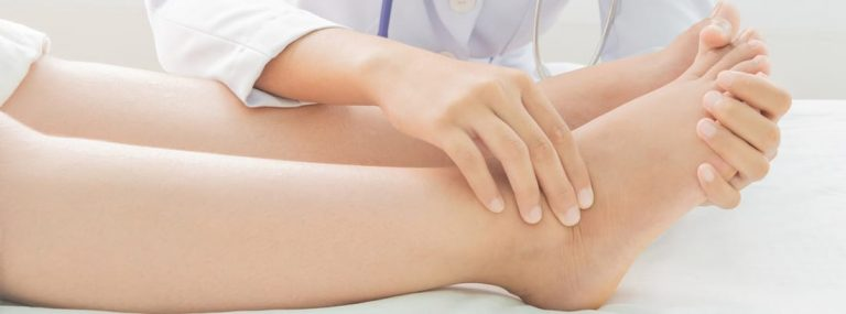 Retención de líquidos: los motivos por los que se te hinchan las piernas