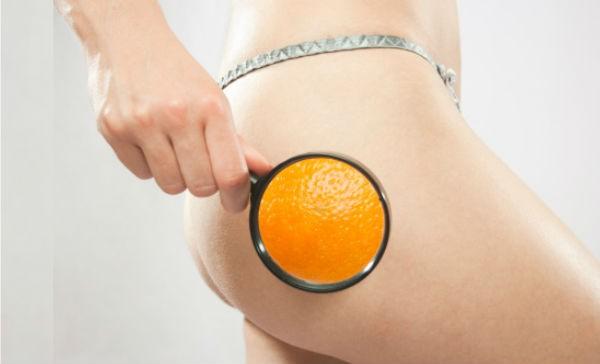 Celulitis: cremas y tratamientos que acaban con la piel de naranja