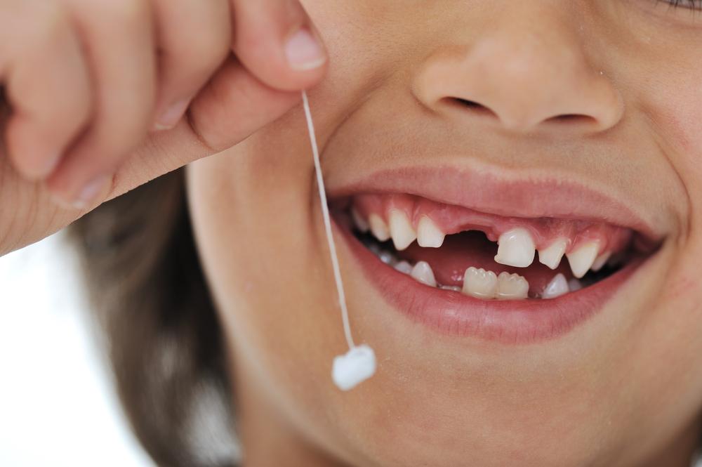 ¿Cómo sacar un diente sin dolor?