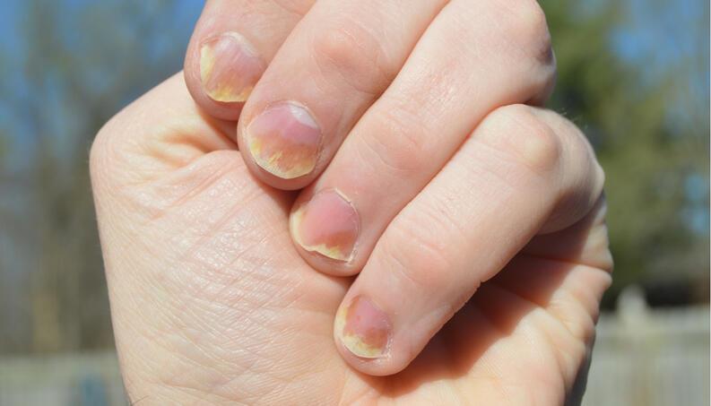 Factores que ocasionan que las uñas amarillas aparezcan