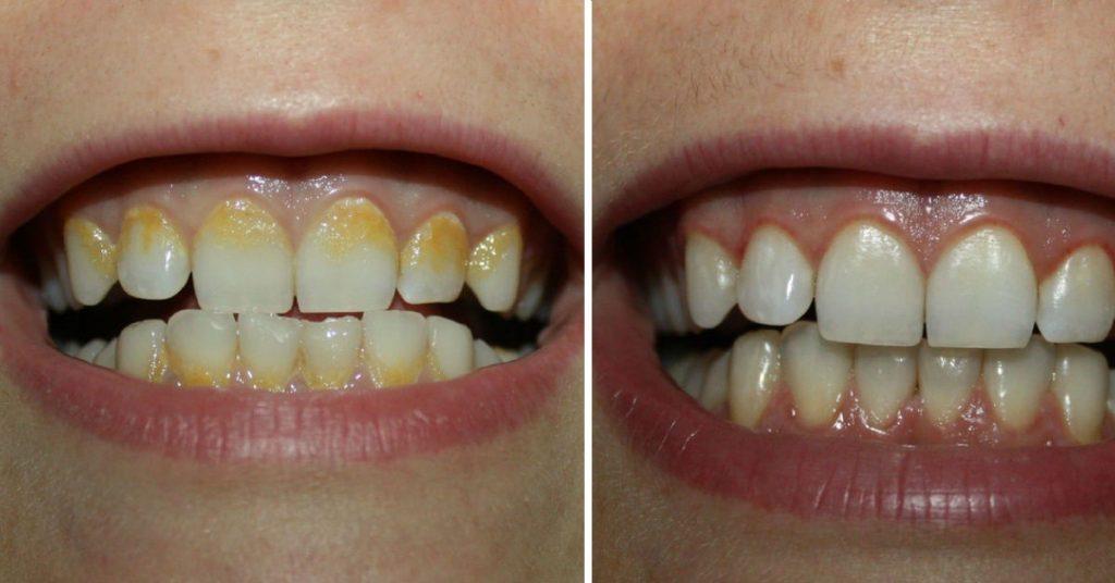 ¿Hay remedios naturales para quitar el sarro de los dientes?