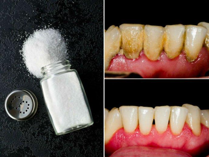 Una mezcla de limón para limpiar los dientes