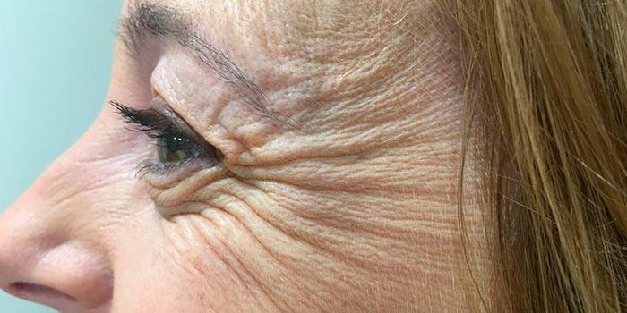 Cómo suavizar las arrugas de tu rostro