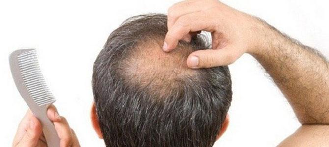 Caída del pelo: causas por las que te puedes quedar calvo
