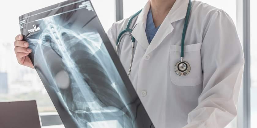 Síntomas que pueden presentarse al tener cáncer de pulmón en etapa temprana