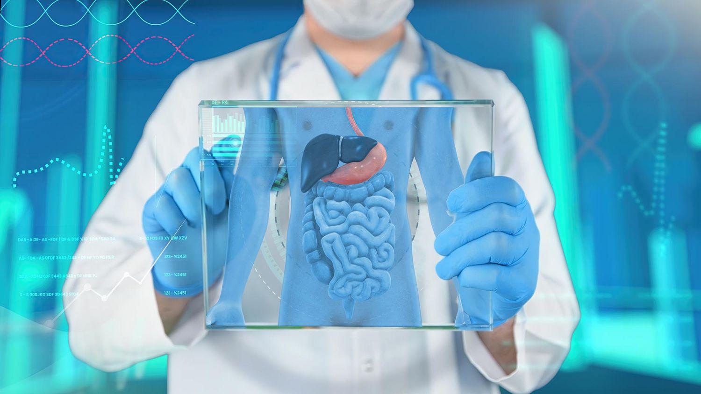 Qué es la estenosis diverticular del colon
