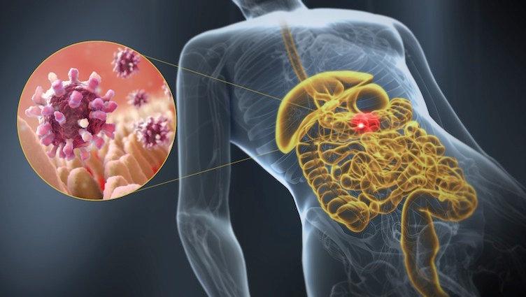 Qué es norovirus