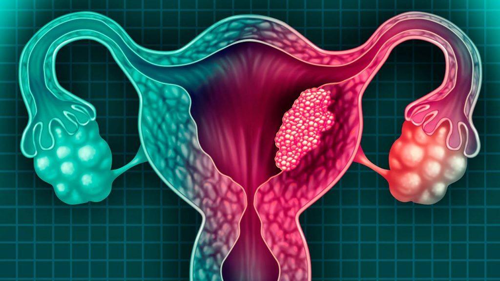 ¿Qué es el cáncer de cérvix?