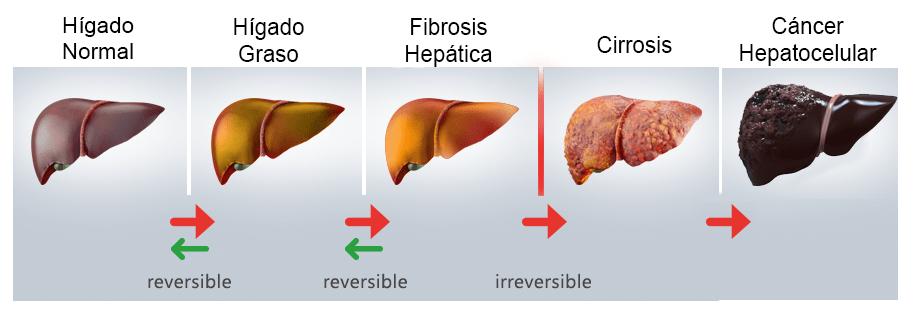 ¿Cuántos tipos de hígado grasos existen?