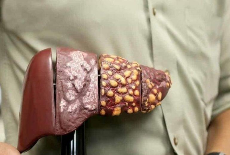 ¿Qué causas el hígado graso?