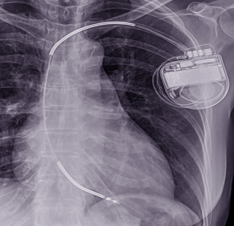 tico implantable (DAI)?