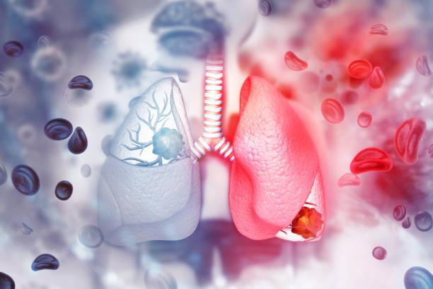 Cómo detectar de forma rápida si sufres cáncer de pulmón