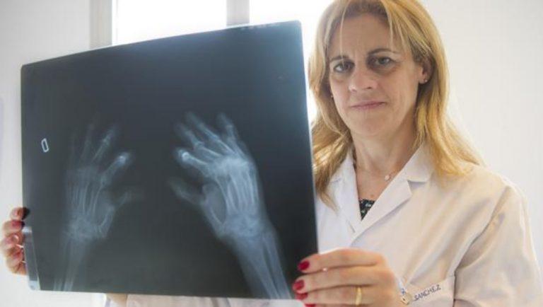 Así pueden destrozar tu cuerpo las radiografías